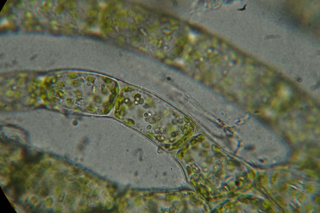 Ptilidium pulcherrimum (63-Col du Béal-Tourbière de la Pigne